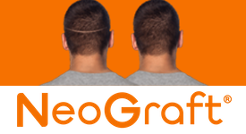 "NeoGraft® Hair Transplant can be used as a ""scar camouflage"" for patients who have undergone previous hair transplants."