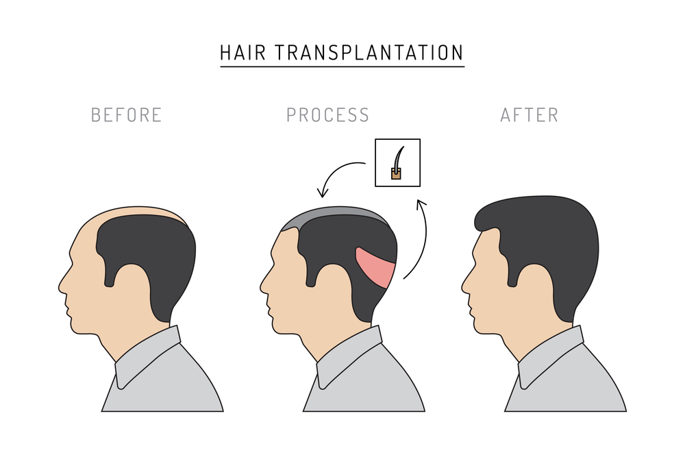 hair transplantation florida