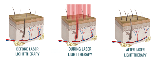 How does laser hair therapy work?