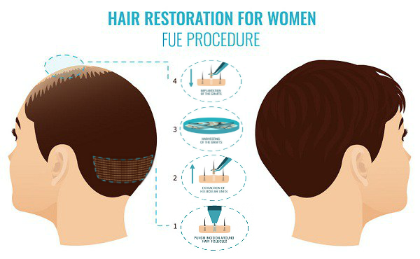 ARTAS hair transplant for women