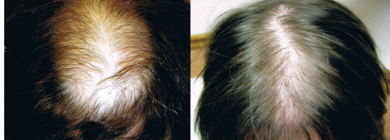 Female hair transplant before and after