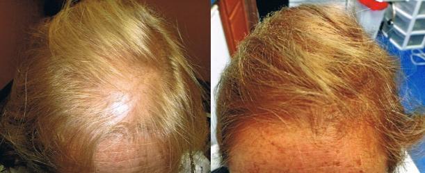 Female hair restoration