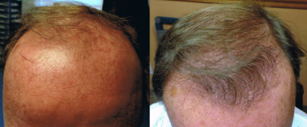 FUE Hair Transplant Before and After Results by Tampa Bay Hair Restoration.