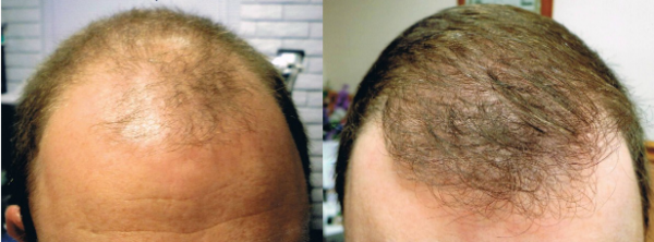 ARTAS before and after results