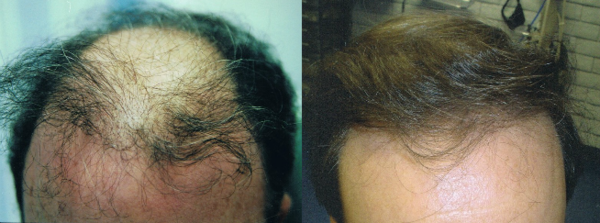 ARTAS Hair Restoration Before and After Results in Tampa, Florida