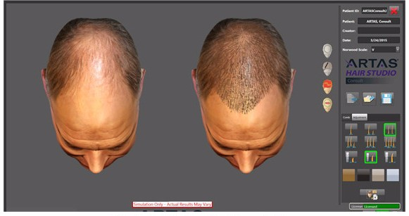 Preview your potential hair growth results before the Robotic Hair Transplant procedure with the ARTAS Hair Studio!