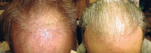 ARTAS hair transplant before and after
