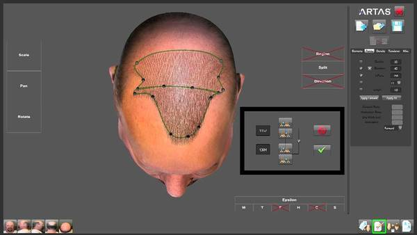 Creating the ideal hairline with the ARTAS robotic hair transplant system