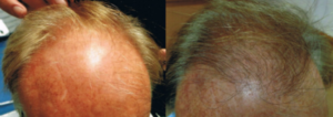 ARTAS Robotic hair transplant before and after