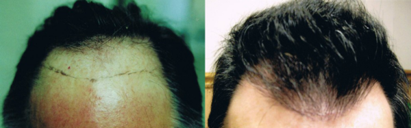 artas hair restoration in Tampa, Florida