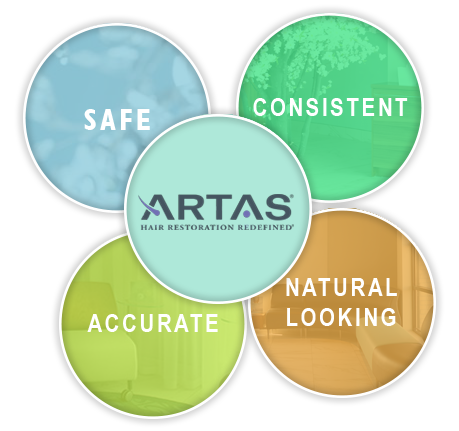 Benefits of ARTAS hair transplant