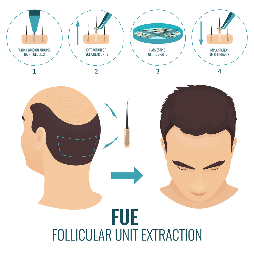 Follicular Unit Extraction (FUE) Hair Transplant in Tampa, Florida.