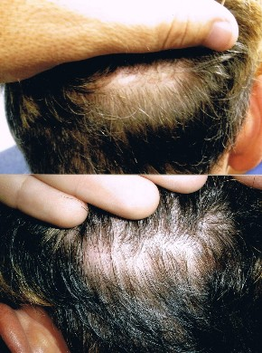 Back of scalp to show minimal scarring after FUT hair transplant linear strip removal in Orlando FL