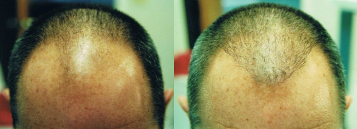 male hair transplant before and after