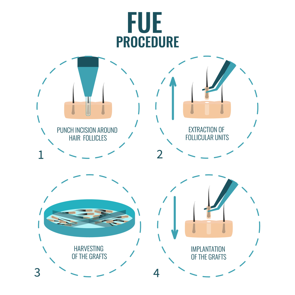 neograft fue hair restoration procedure