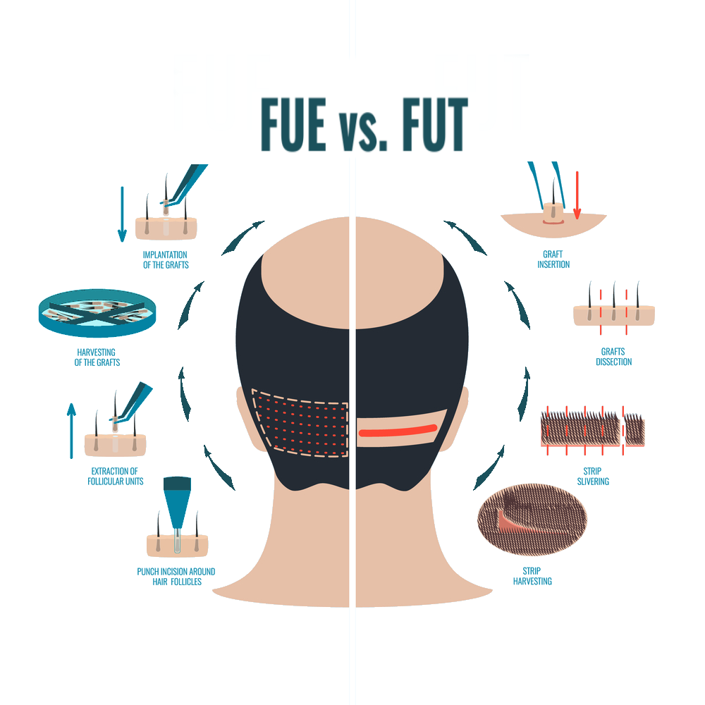 Learn the differences between the FUT vs. FUE Hair Transplant methods.