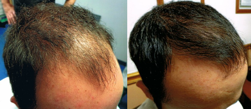 FUT Hair Transplant Before and After Results by Tampa Bay Hair Restoration in Florida.