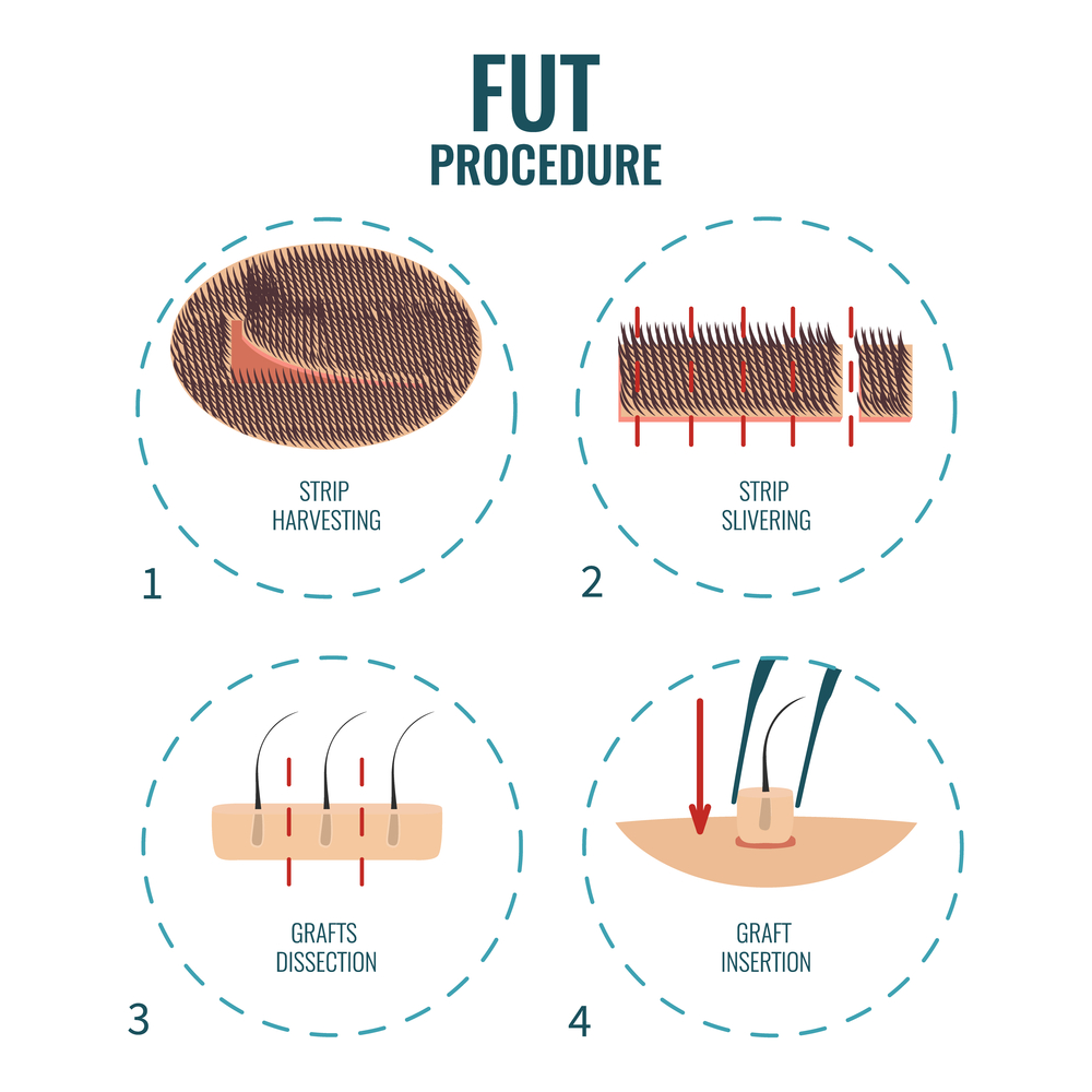 FUT hair transplant procedure Orlando Florida