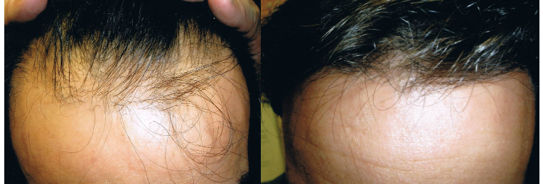 Laser hair therapy before and after results