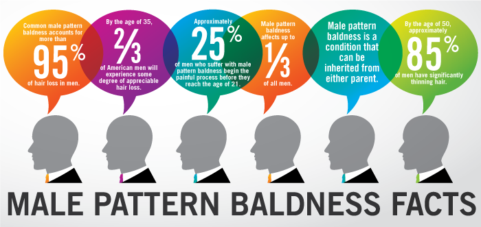 Facts dealing with male pattern baldness and androgenic alopecia