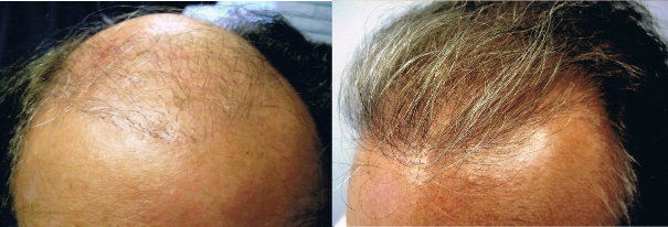 neograft fue hair restoration before and after reuslts