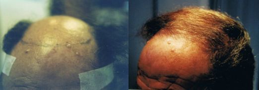 NeoGraft Hair Transplant Before and After Photos in Tampa, Florida at Tampa Bay Hair Restoration.