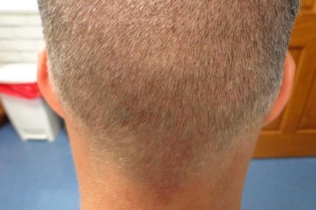 No scar in the donor area after NeoGraft Hair Transplant Orlando