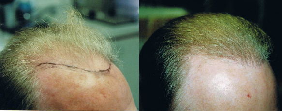 NeoGraft Before and After Photos - Male NeoGraft Hair Transplant Results.