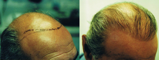 NeoGraft Hair Transplant Before and After Photo (Tampa, Florida)