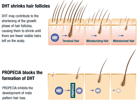 Propecia hair loss treatment