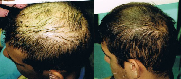 PRP Hair Restoration Before & After Photos in Pinellas County