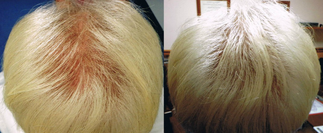 prp treatment for hair loss before and after photos