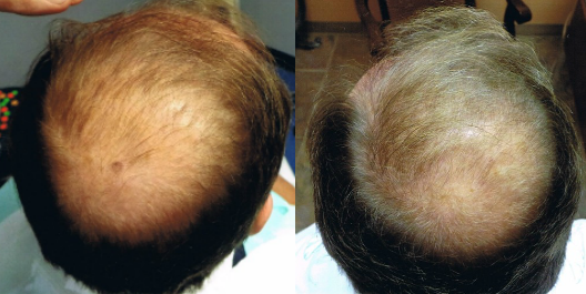 PRP Therapy for Hair Loss Before & After Pictures in Clearwater, Florida