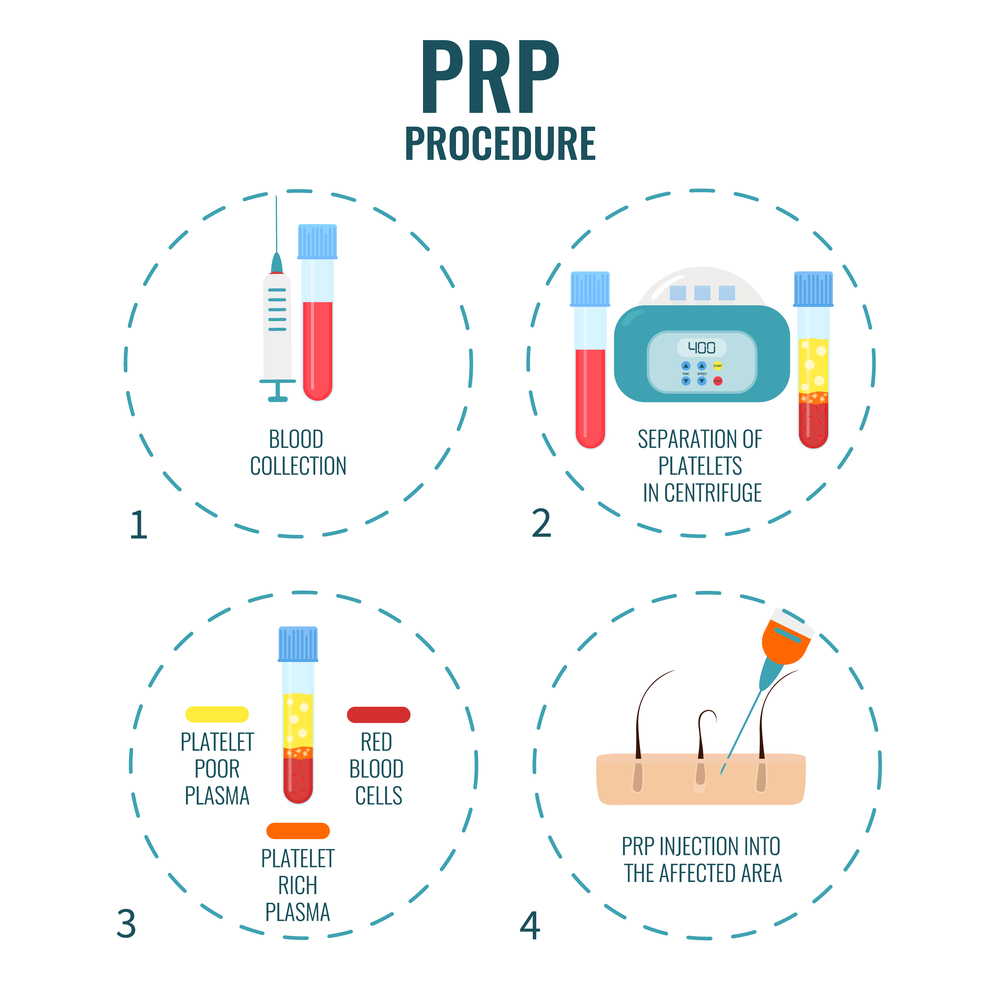 Platelet rich plasma PRP procedure for hair loss