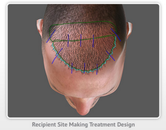 ARTAS hair restoration design for maximum hair growth
