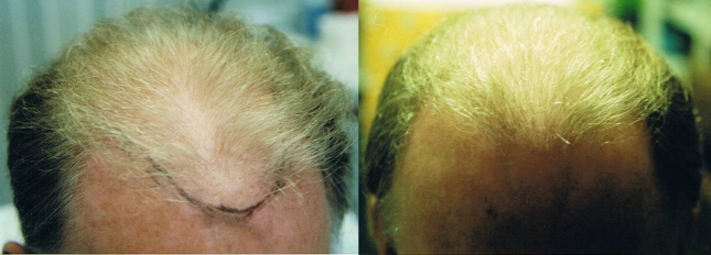 Stem cell hair growth before and after results