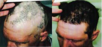 Stem cell hair regrowth