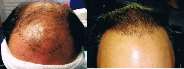 Stem cell hair transplant before and after results