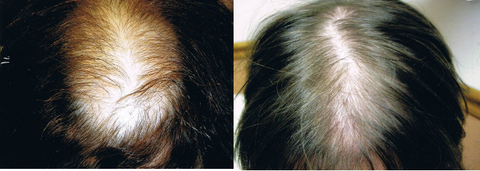 Female stem cell hair treatment before and after results