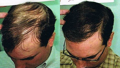 Stem cell hair treatment results