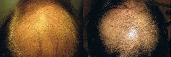 Stem cell therapy hair loss treatment results