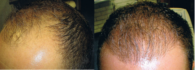 Follicular unit transplantation before and after photos in Orlando