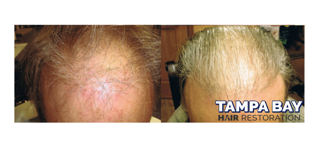 Male Hair Transplant Before and After Photos by Dr. Michael Markou - the BEST Hair Transplant Surgeon in Tampa, Florida.