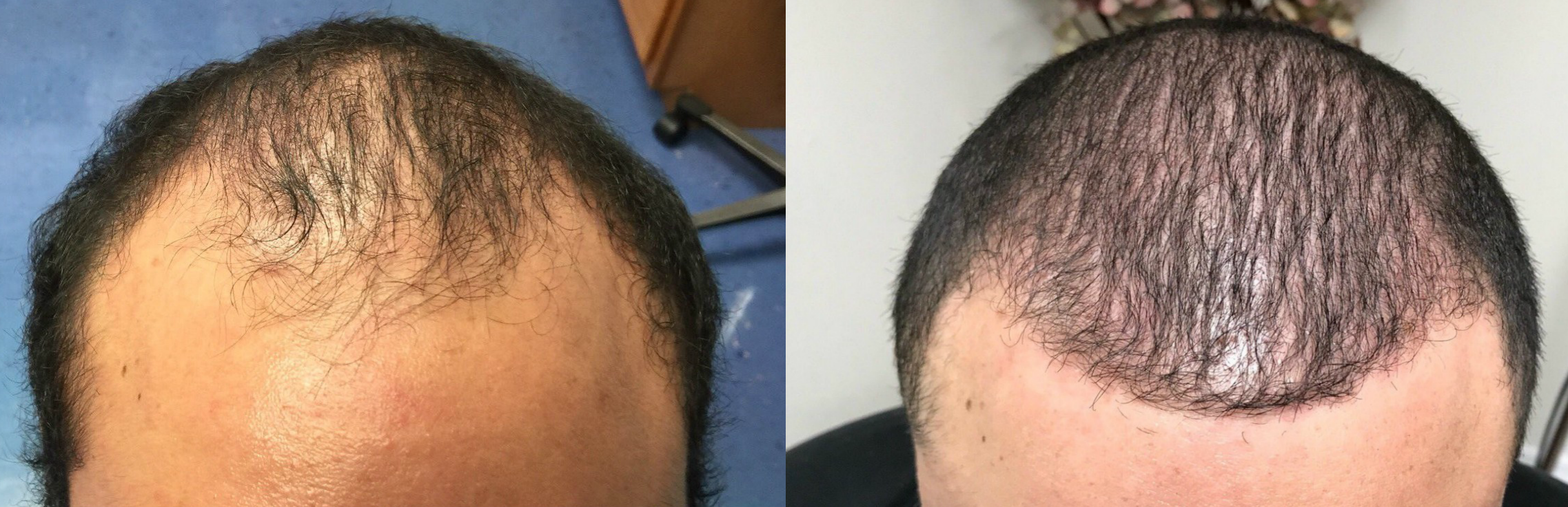 ARTAS Hair Transplant Before and After Results in Tampa, FL