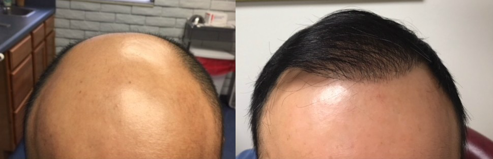 ARTAS Hair Transplant Before and After by Tampa Bay Hair Restoration.