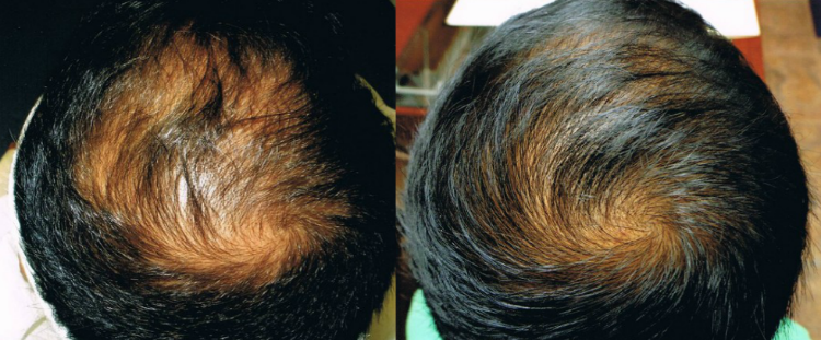 PRP Treatment for Hair Loss Before & After in St. Petersburg, FL by TBHR
