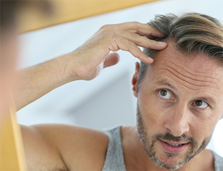 Noticing thinning hair? Restore hair loss with Tampa Hair Restoration by Dr. Michael Markou!