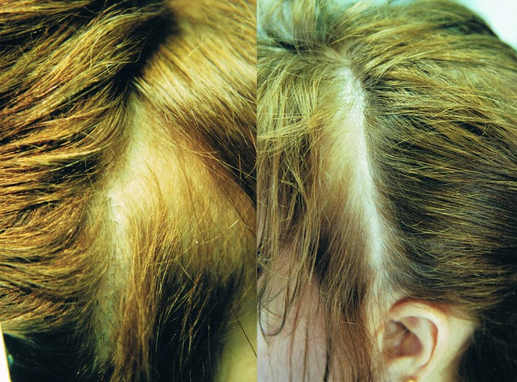 Female PRP Hair Treatment Before & After in St. Petersburg, FL