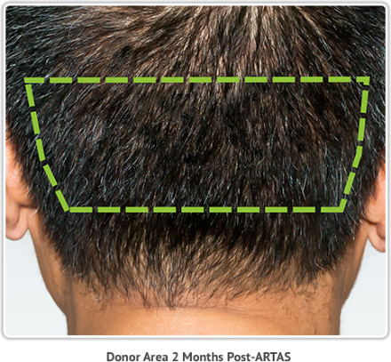The ARTAS Hair Transplant donor area is the area of the scalp unaffected by hair loss, and is usually located on the back and sides of scalp.