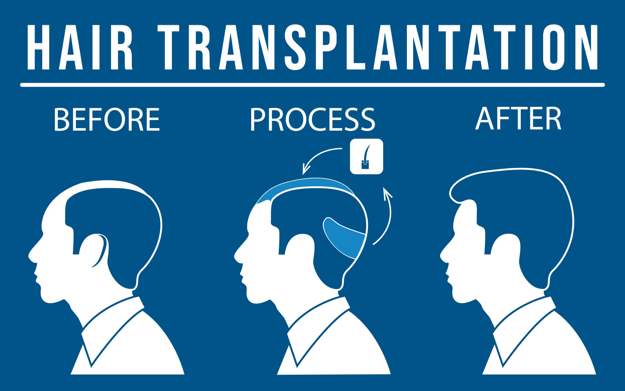 The Hair Transplantation Process.